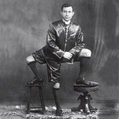 circus-freak-francesco-lentini-three-legs